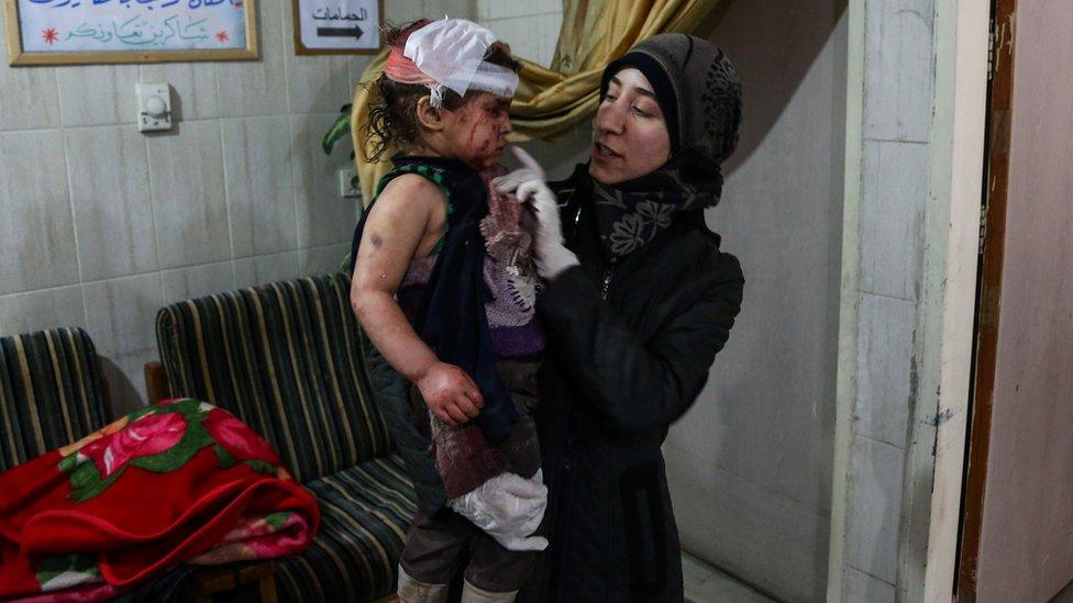 """أماني بلور في مشفى """"الكهف"""" في كفربطنا/ غوطة دمشق الشرقية، فبراير/شباط 2018"""